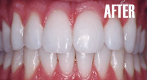 implant_after
